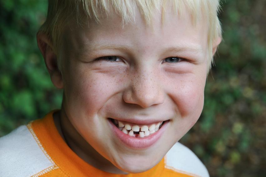 Schneidezähnen zwischen grosse zahnlücke den Zahnlücke